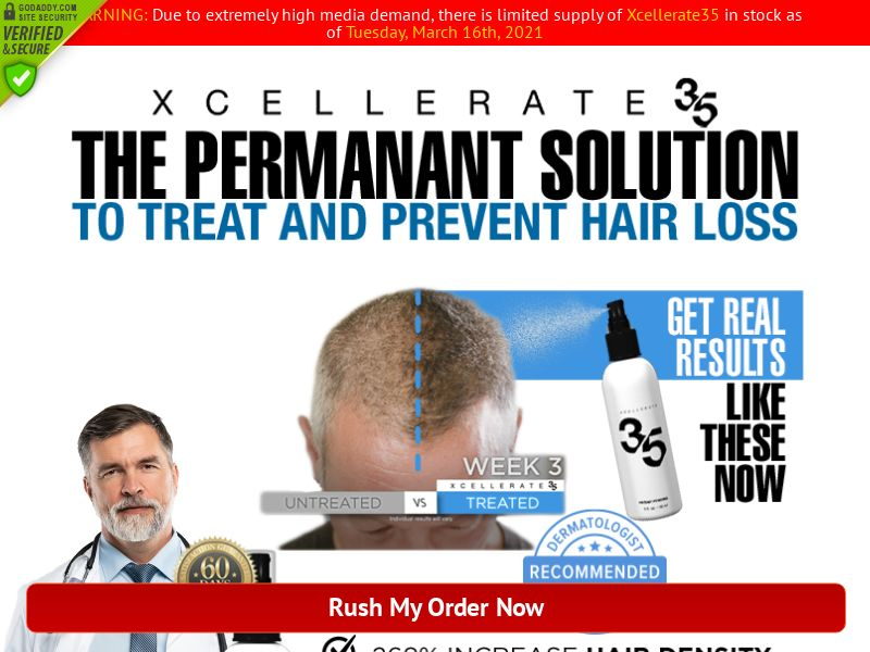Xcellerate Hair Growth SS - US