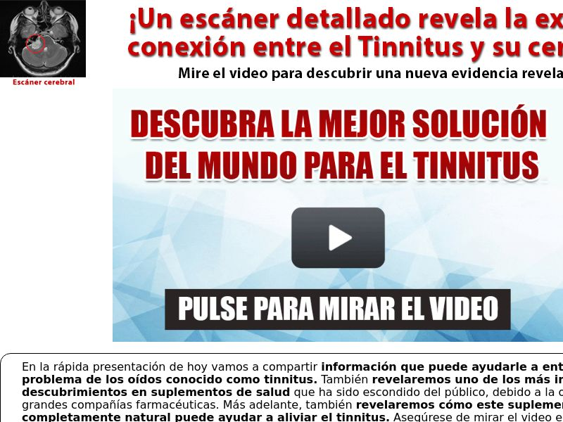 Tinnitus 911 [INTL - Spanish] (Email,Native,Social,Search,SEO,SMS) - CPA
