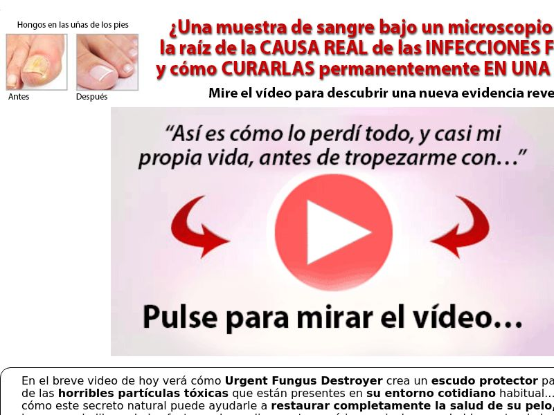 Urgent Fungus Destroyer [INTL - Spanish] (Native,Social,Search,SEO,SMS) - CPA {No Email}